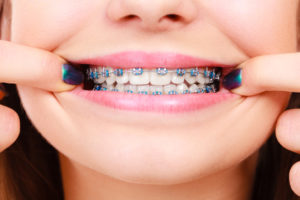 The Problem? Teeth Sometimes Return to Their Original Places After Braces. Here's the Solution.